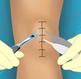 ניתוח ברך וירטואלי